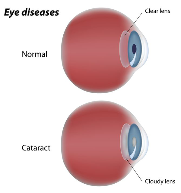 cataracts in paterson
