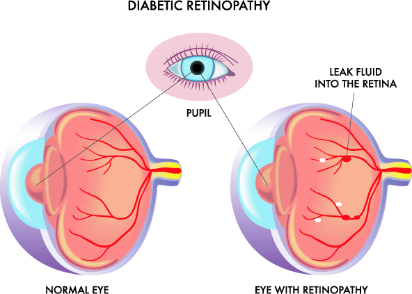 diabetic retinopathy in paterson