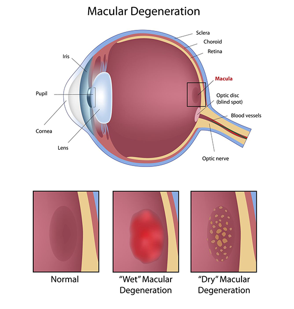 macular degeneration in paterson